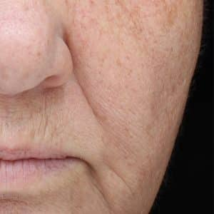 An image that shows a woman's face following 6 weeks of treatment with the NowMi device. The image shows a reduction in fine lines, brown spots and improved appearance of the skin.
