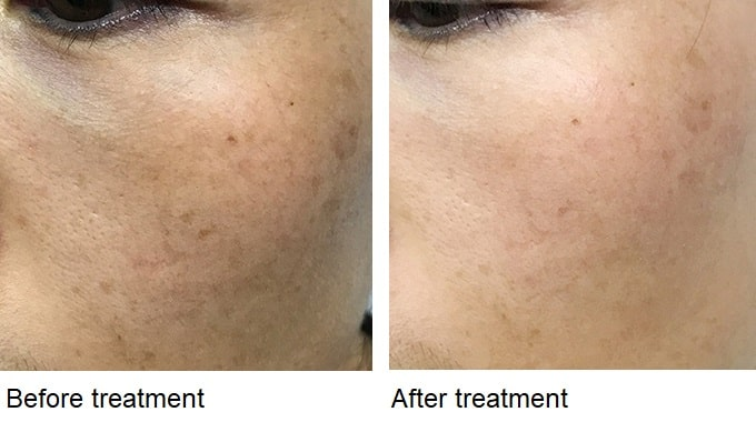 Skin lightening after the NowMi vitamin C oxygen facial treatment