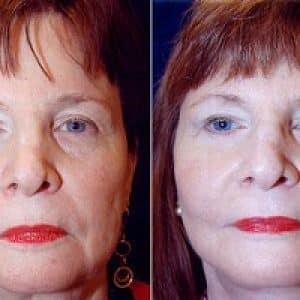 B&A of a woman after a facelift