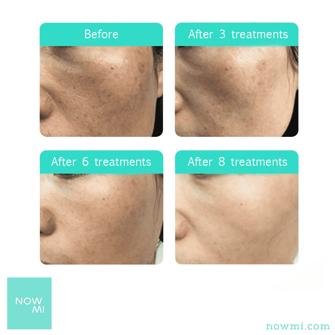 NowMi PRO clinical results