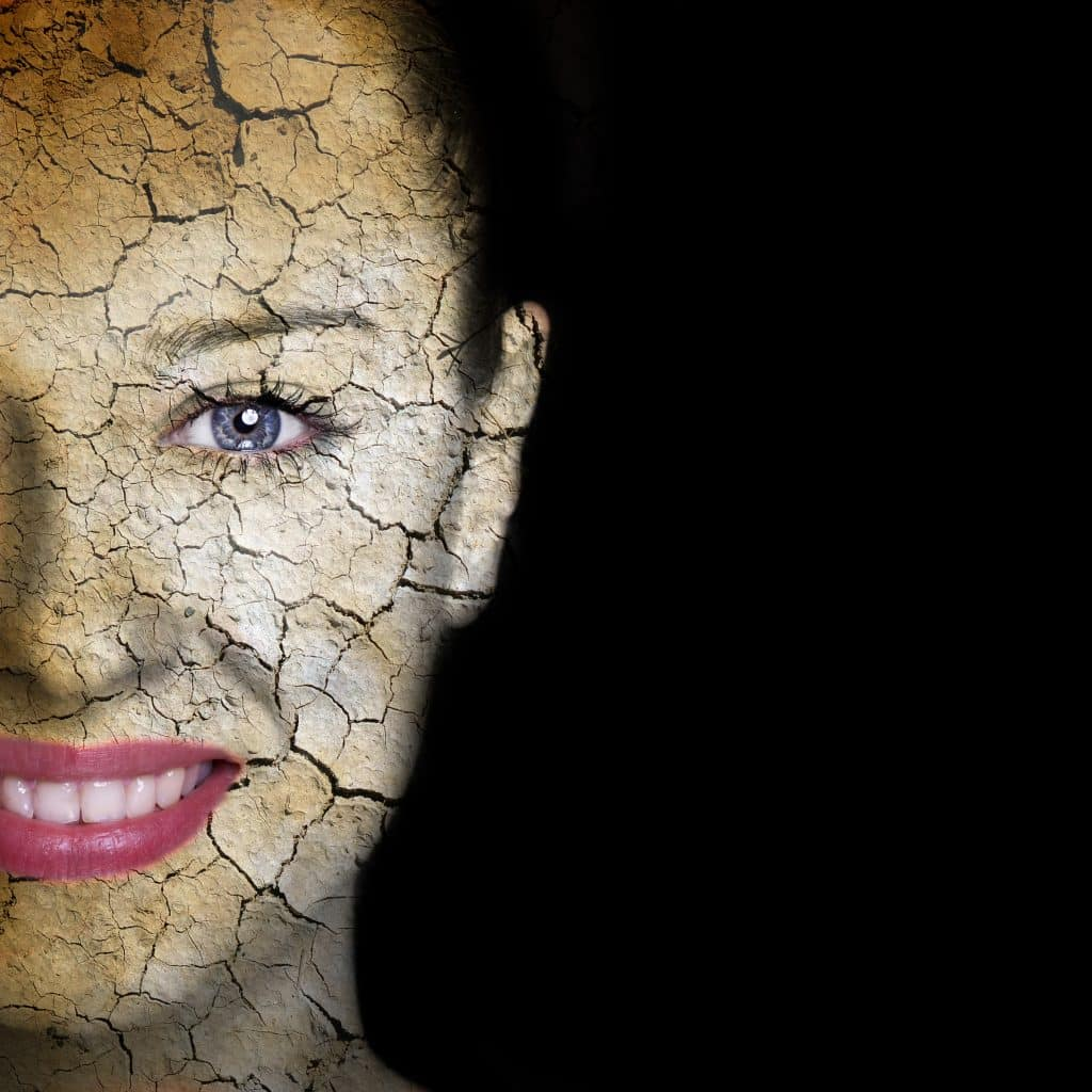 extreme dry skin cause wrinkles to be reversed by oxygen facial treatment