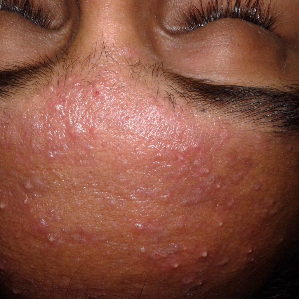 Acne vulgaris on very oily skin