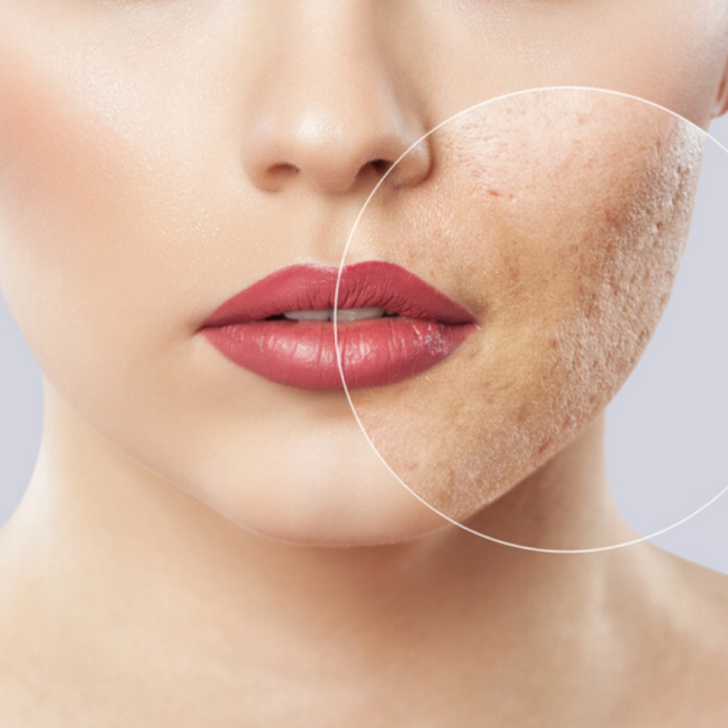 oxygen facial treatment of acne scars - nowmi