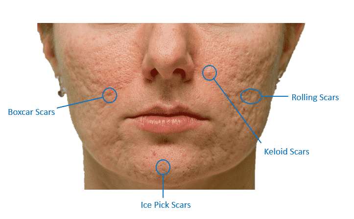 Types of acne scars | NowMi