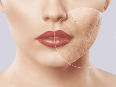 Acne Scars | NowMi