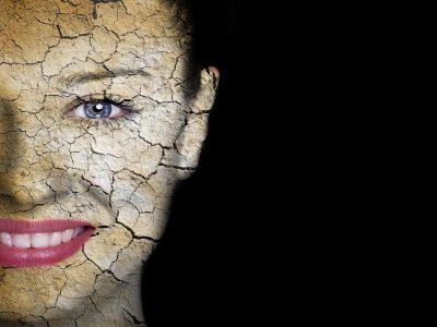 Dry Skin NowMi