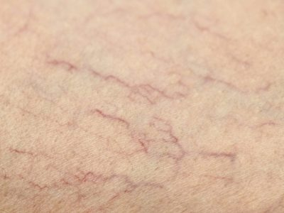 spider veins: nowmi